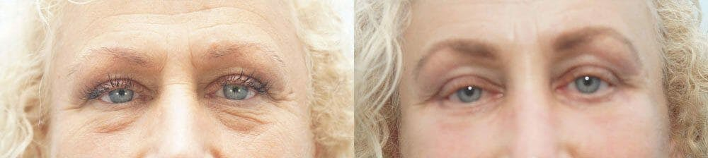 Eyelid Surgery Gallery - Patient 53582636 - Image 1