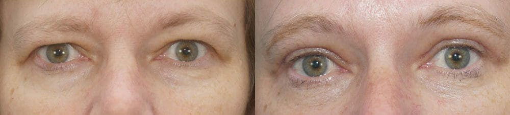 Eyelid Surgery Gallery - Patient 53582637 - Image 1