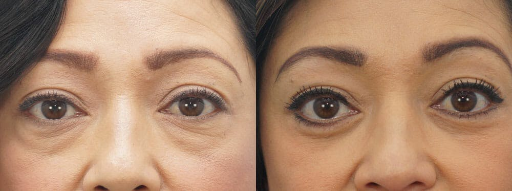 Eyelid Surgery Gallery - Patient 53582638 - Image 1
