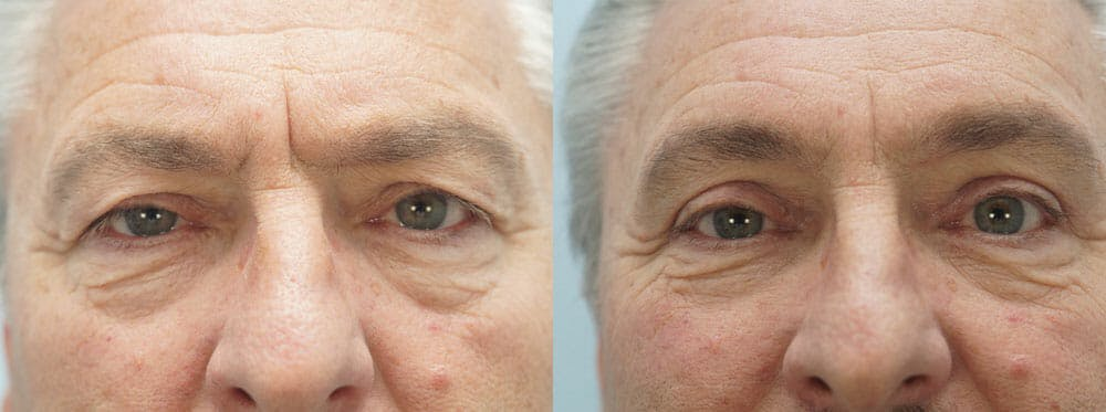 Eyelid Surgery Gallery - Patient 53582639 - Image 1
