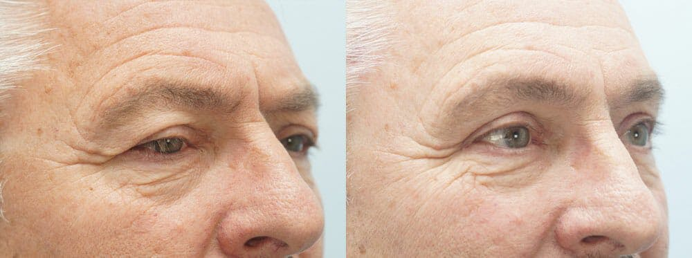 Eyelid Surgery Gallery - Patient 47148453 - Image 2