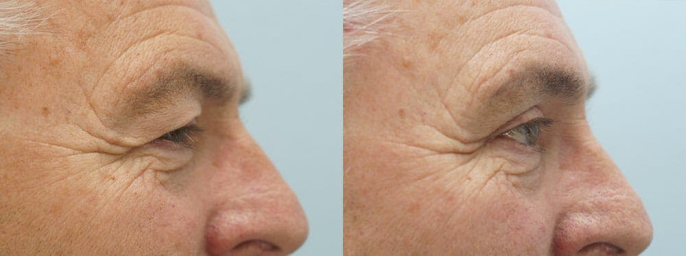 Eyelid Surgery Gallery - Patient 47148453 - Image 3