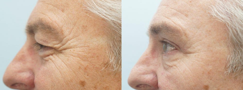 Eyelid Surgery Gallery - Patient 47148453 - Image 4