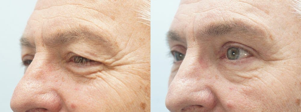 Eyelid Surgery Gallery - Patient 47148453 - Image 5