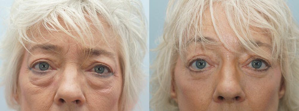 Eyelid Surgery Gallery - Patient 53582640 - Image 1