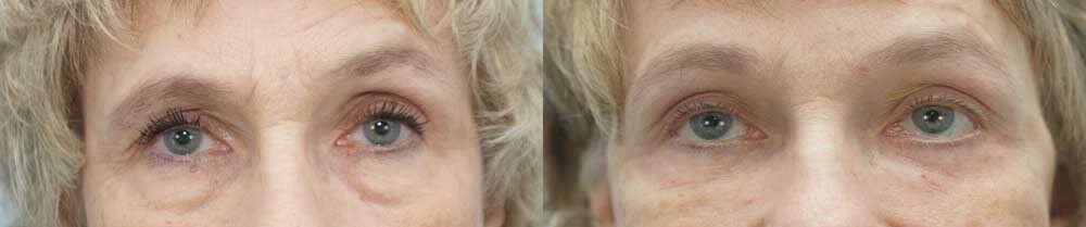 Eyelid Surgery Gallery - Patient 53582642 - Image 1