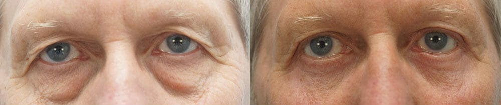Eyelid Surgery Gallery - Patient 53582643 - Image 1