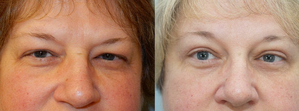 Eyelid Surgery Gallery - Patient 53582644 - Image 1