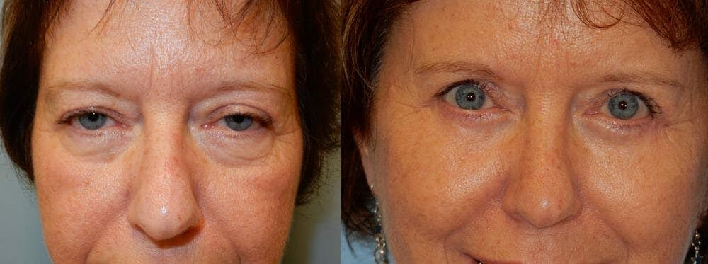 Eyelid Surgery Gallery - Patient 53582645 - Image 1