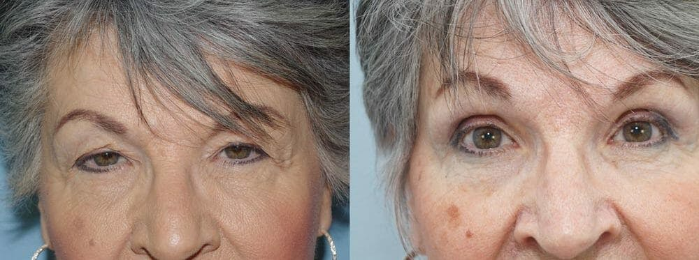 Eyelid Surgery Gallery - Patient 53582646 - Image 1