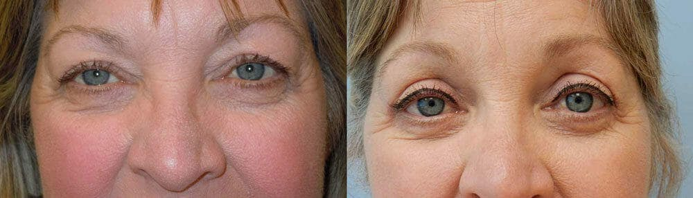 Eyelid Surgery Gallery - Patient 53582647 - Image 1