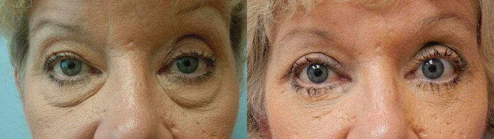 Eyelid Surgery Gallery - Patient 53582648 - Image 1