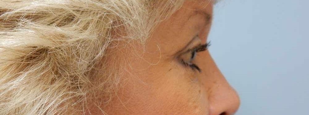Eyelid Surgery Gallery - Patient 53582648 - Image 2