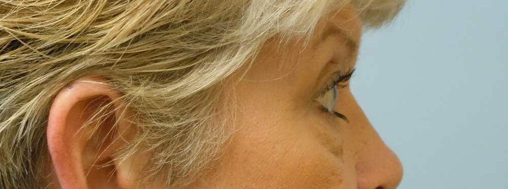 Eyelid Surgery Gallery - Patient 53582648 - Image 3