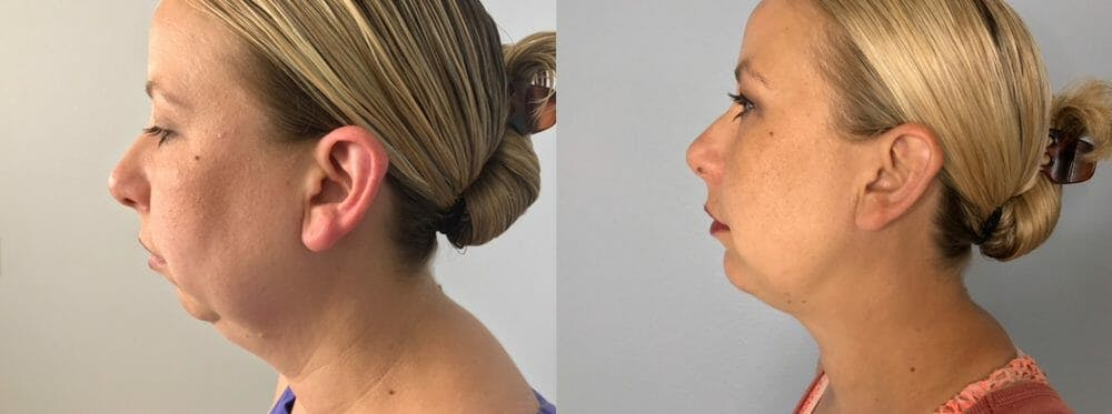 Chin Augmentation Gallery - Patient 47148539 - Image 1