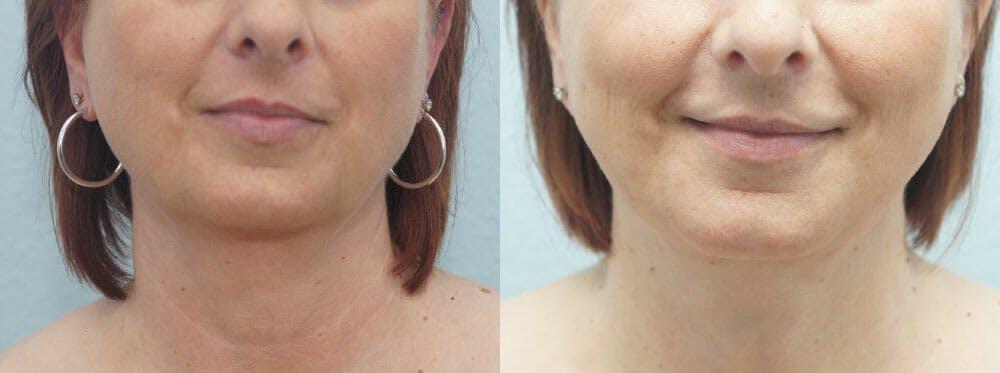Facial Liposuction Gallery - Patient 47148562 - Image 1