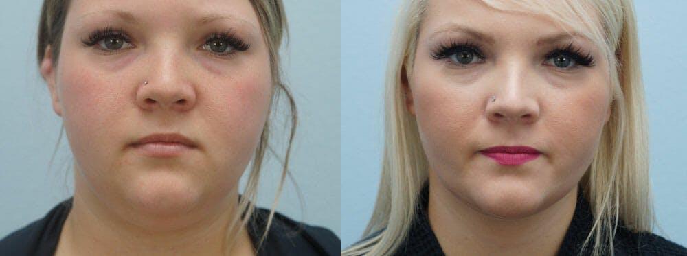 Facial Liposuction Gallery - Patient 47148563 - Image 1