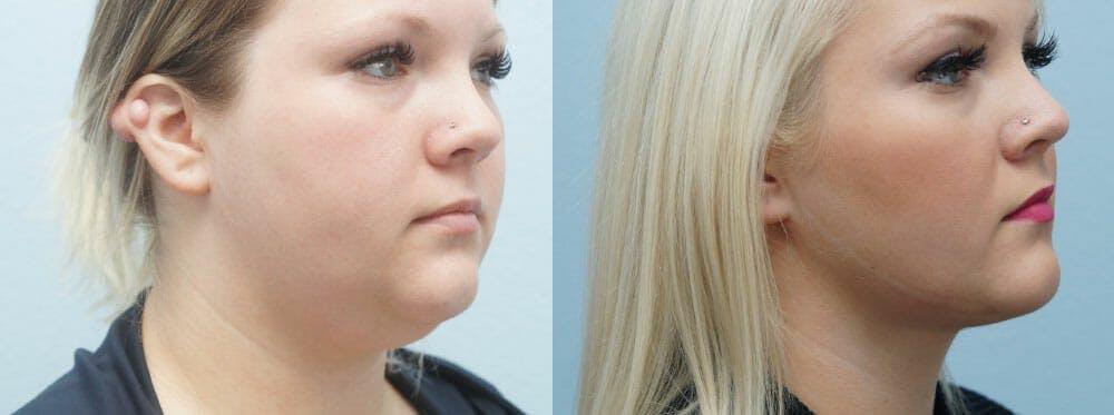 Facial Liposuction Gallery - Patient 47148563 - Image 2