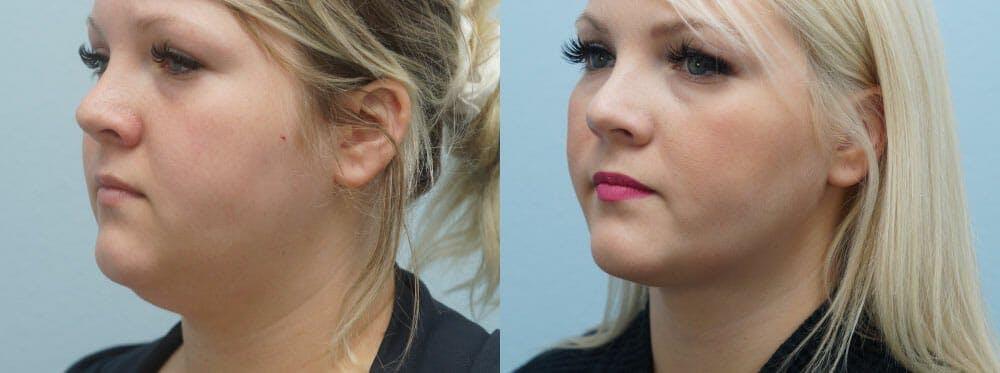 Facial Liposuction Gallery - Patient 47148563 - Image 4