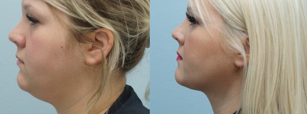 Facial Liposuction Gallery - Patient 47148563 - Image 5