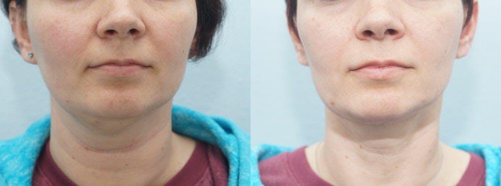 Facial Liposuction Gallery - Patient 47148564 - Image 1