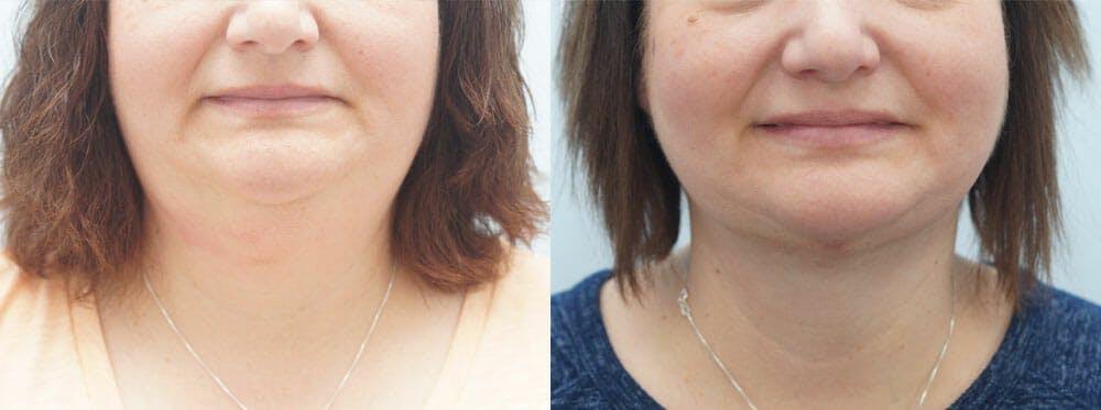 Facial Liposuction Gallery - Patient 47148565 - Image 1