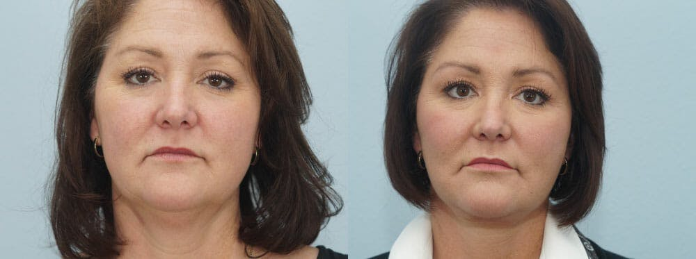 Facelift Surgery Gallery - Patient 47149497 - Image 1