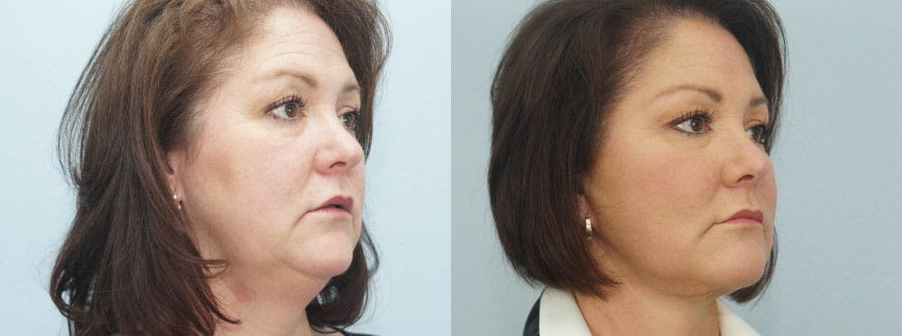 Facelift Surgery Gallery - Patient 47149497 - Image 2