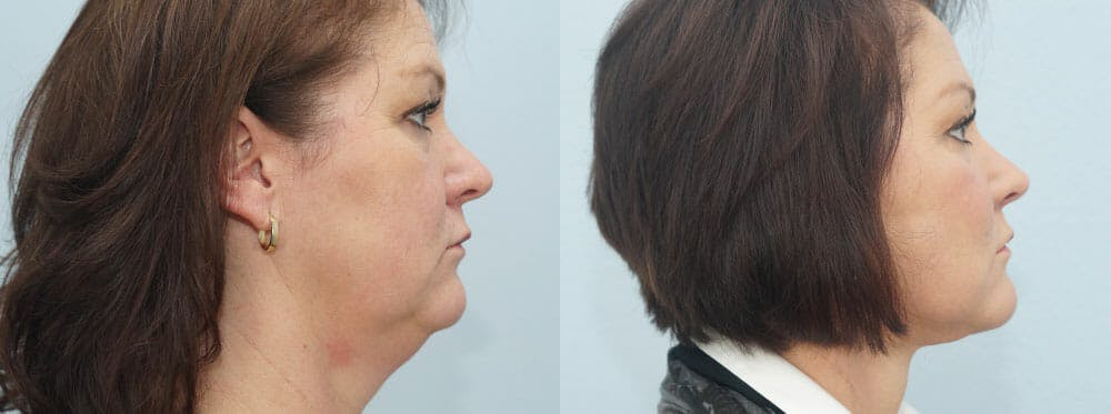 Facelift Surgery Gallery - Patient 47149497 - Image 3