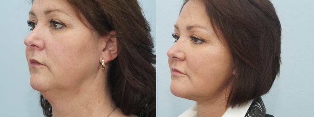 Facelift Surgery Gallery - Patient 47149497 - Image 4
