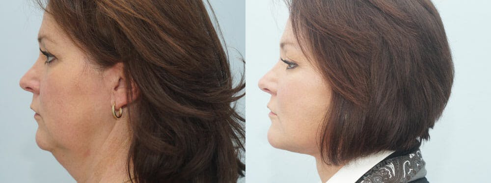 Facelift Surgery Gallery - Patient 47149497 - Image 5