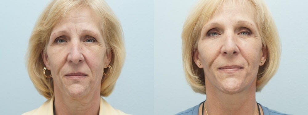 Facelift Surgery Gallery - Patient 47149498 - Image 1