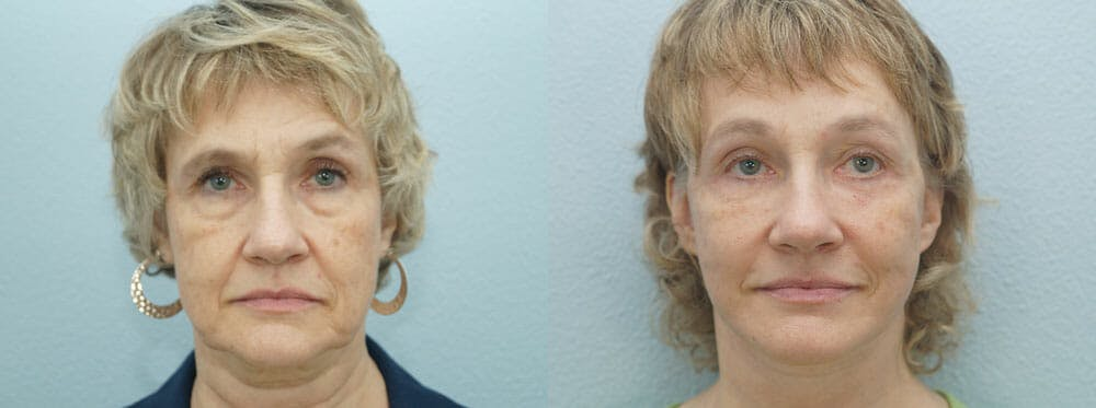 Facelift Surgery Gallery - Patient 47149499 - Image 1