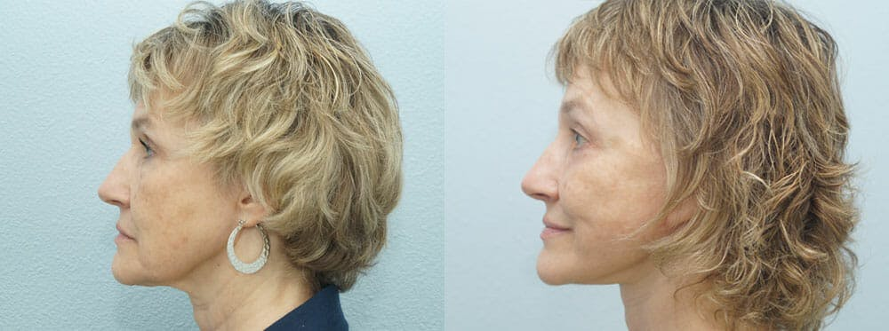 Facelift Surgery Gallery - Patient 47149499 - Image 2
