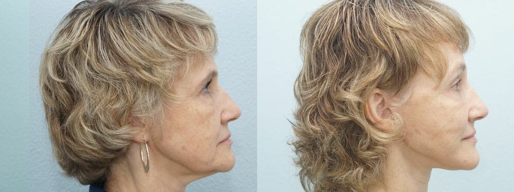 Facelift Surgery Gallery - Patient 47149499 - Image 3