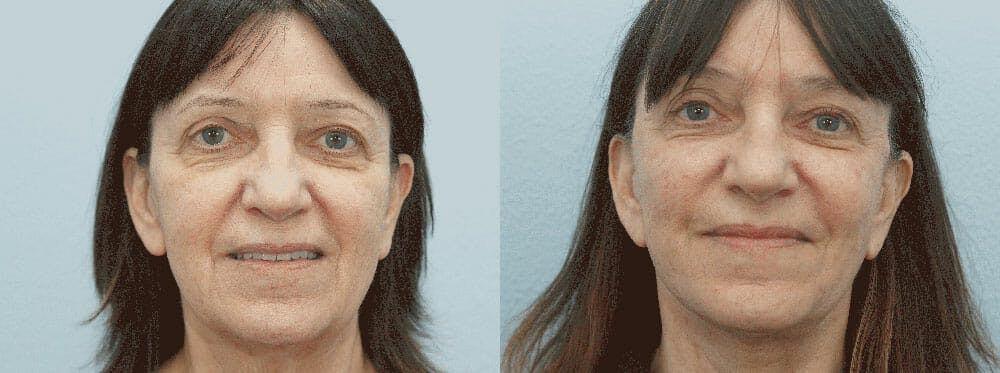 Facelift Surgery Gallery - Patient 47149502 - Image 1
