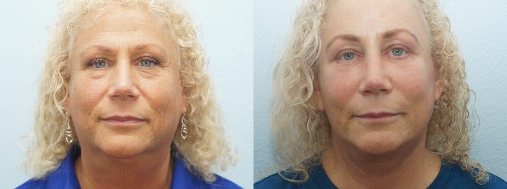 Facelift Surgery Gallery - Patient 47149506 - Image 1