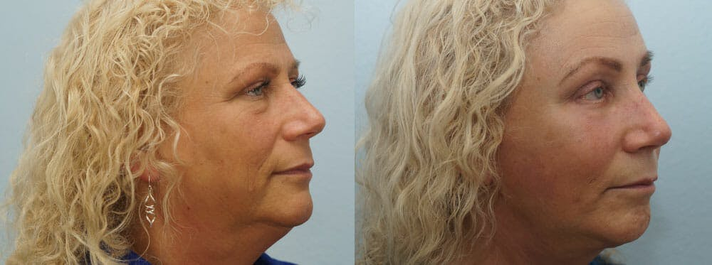 Facelift Surgery Gallery - Patient 47149506 - Image 2