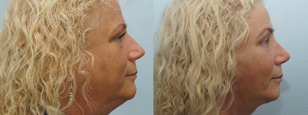Facelift Surgery Gallery - Patient 47149506 - Image 3