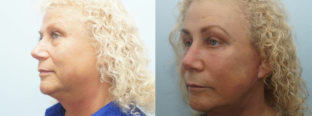 Facelift Surgery Gallery - Patient 47149506 - Image 4