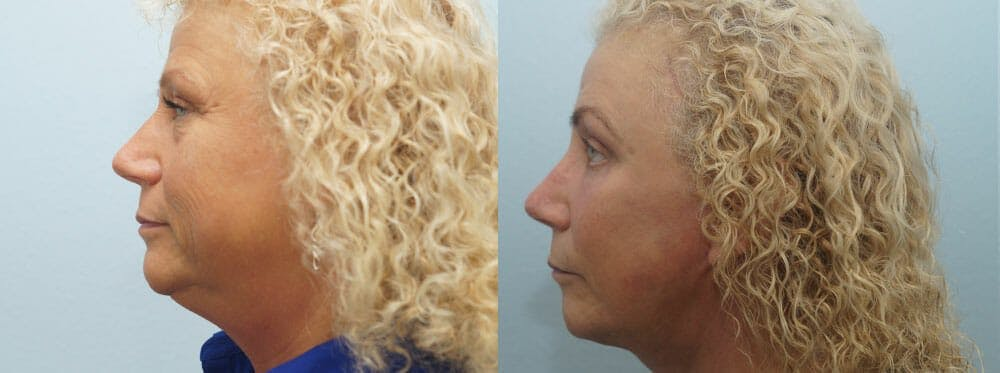 Facelift Surgery Gallery - Patient 47149506 - Image 5