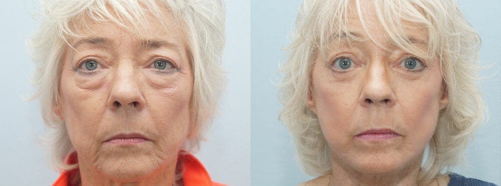 Facelift Surgery Gallery - Patient 47149507 - Image 1
