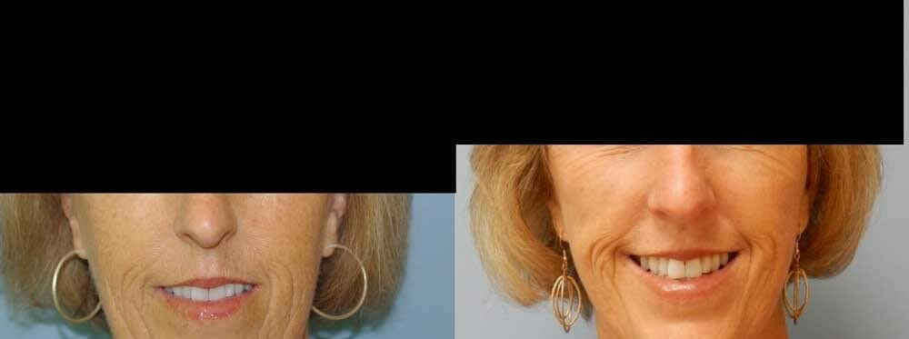 Facelift Surgery Gallery - Patient 47149508 - Image 1