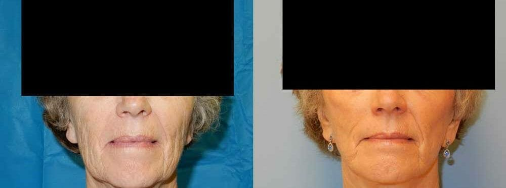 Facelift Surgery Gallery - Patient 47149509 - Image 1