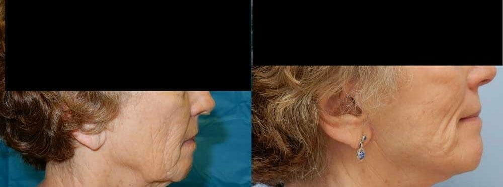 Facelift Surgery Gallery - Patient 47149509 - Image 2