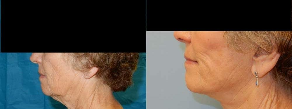 Facelift Surgery Gallery - Patient 47149509 - Image 3