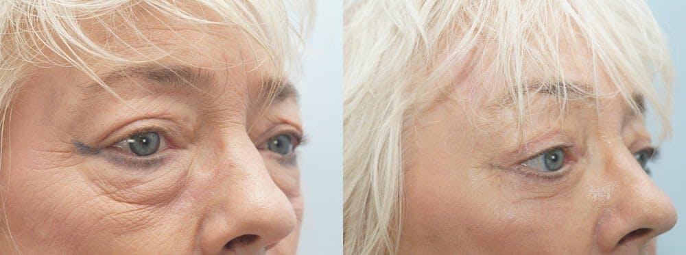 Laser Resurfacing  Gallery - Patient 47149654 - Image 2