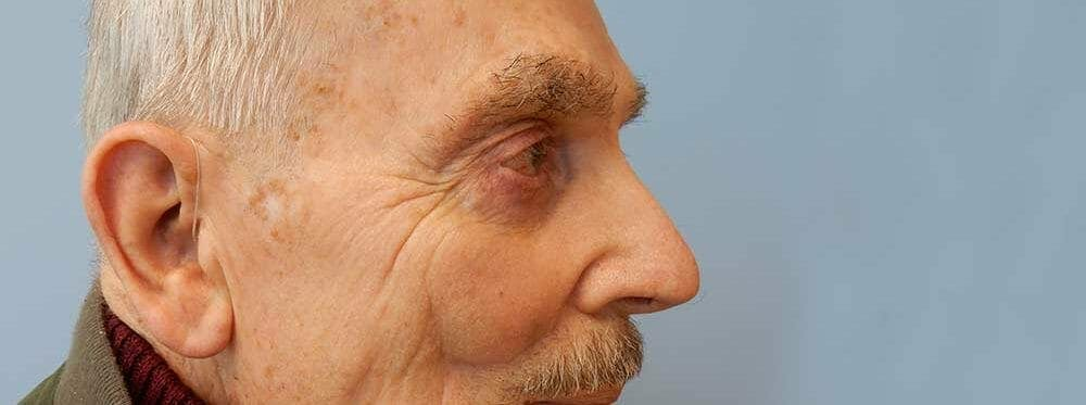 Mohs Reconstruction Gallery - Patient 47149795 - Image 1