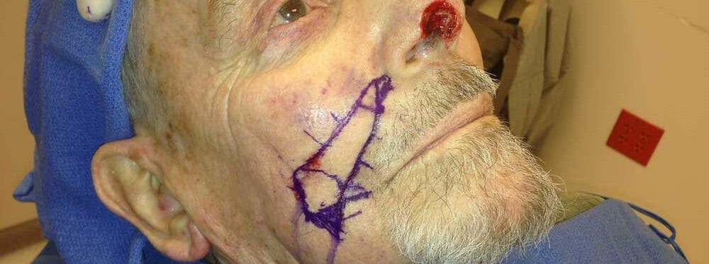 Mohs Reconstruction Gallery - Patient 53582801 - Image 2
