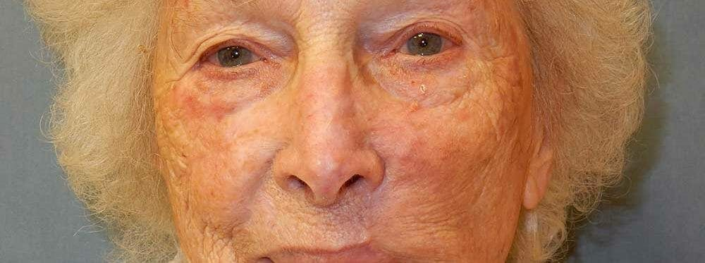 Mohs Reconstruction Gallery - Patient 47149796 - Image 1